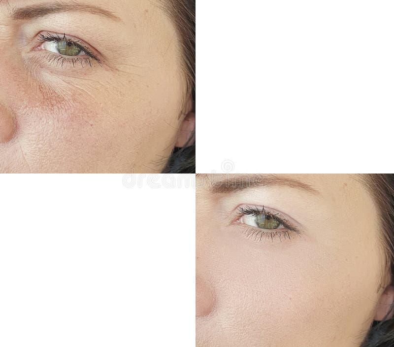 Terapi f?r tillv?gag?ngss?tt f?r kosmetolog f?r dermatologi f?r kvinnlig framsidaskrynklacollage lyftande f?re och efter royaltyfri fotografi