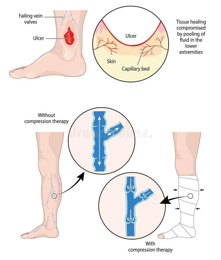 Terapia de la compresión para las úlceras de la pierna stock de ilustración