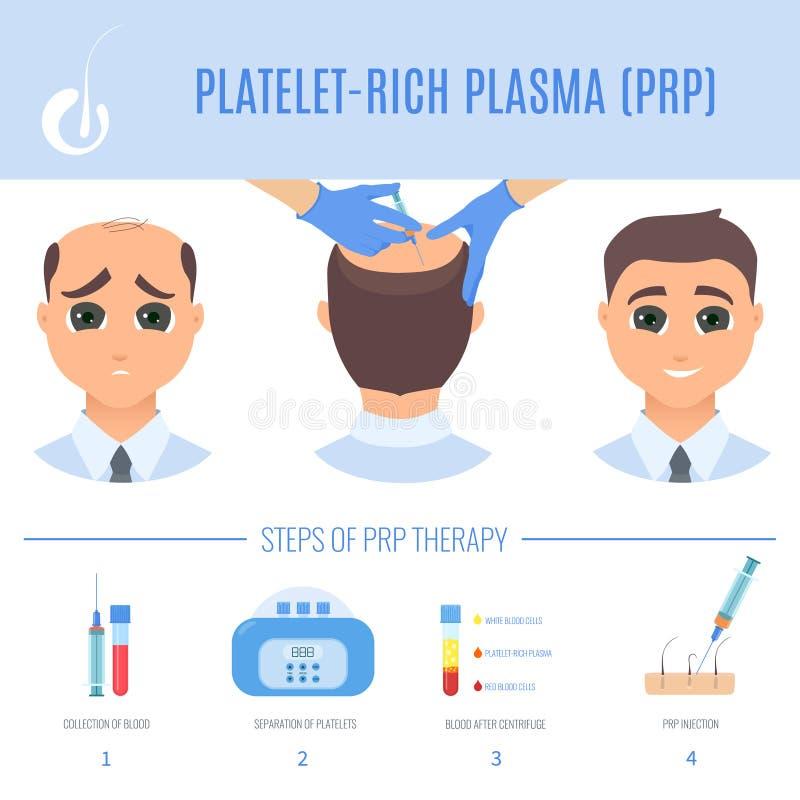 Terapia de PRP para homens ilustração do vetor