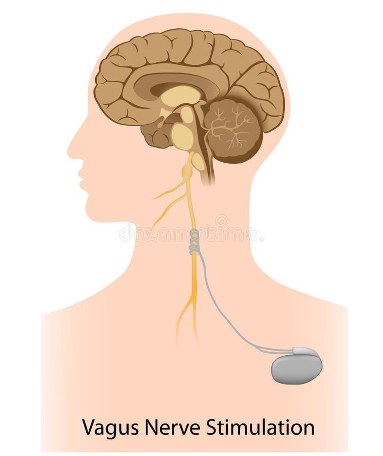 Terapia del estímulo del nervio de nervio vago ilustración del vector