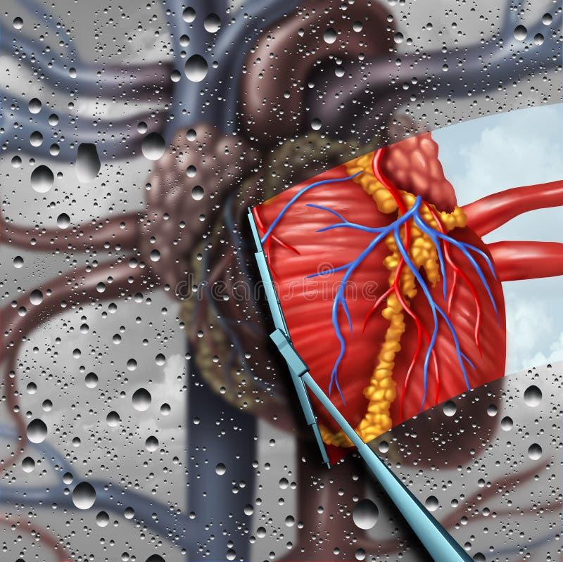 Terapia humana de la enfermedad cardíaca stock de ilustración