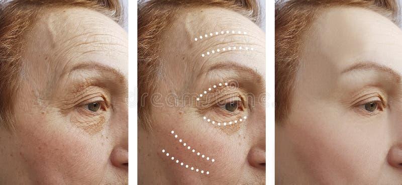 Terapia mayor del retiro de las arrugas de la mujer antes y después de la diferencia de la elevación fotos de archivo libres de regalías