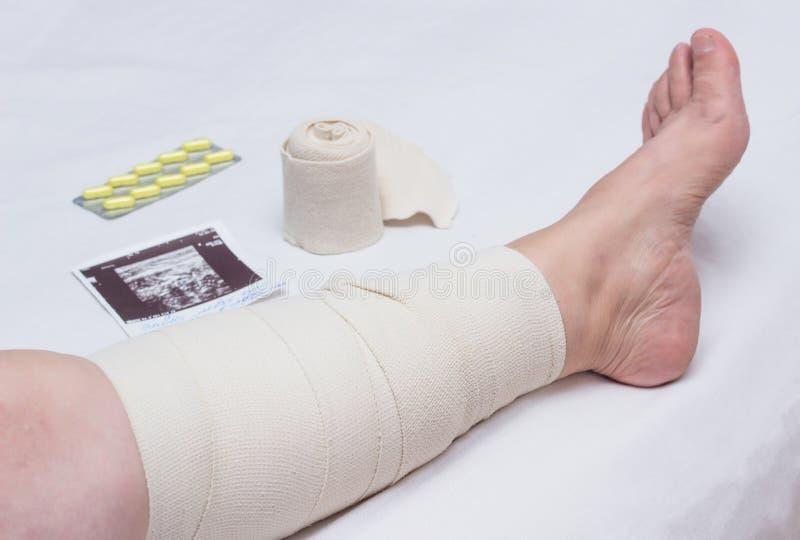 Terapia per le vene varicose in gambe di una donna, trattamento di compressione delle vene varicose con una fasciatura elastica,  immagini stock libere da diritti