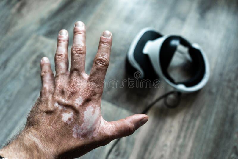 A terrible hand struck by vitiligo reaches for a helmet. Health concept stock image