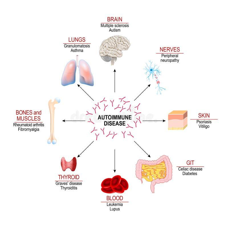 Tessuti del corpo umano colpito tramite l'attacco autoimmune illustrazione vettoriale