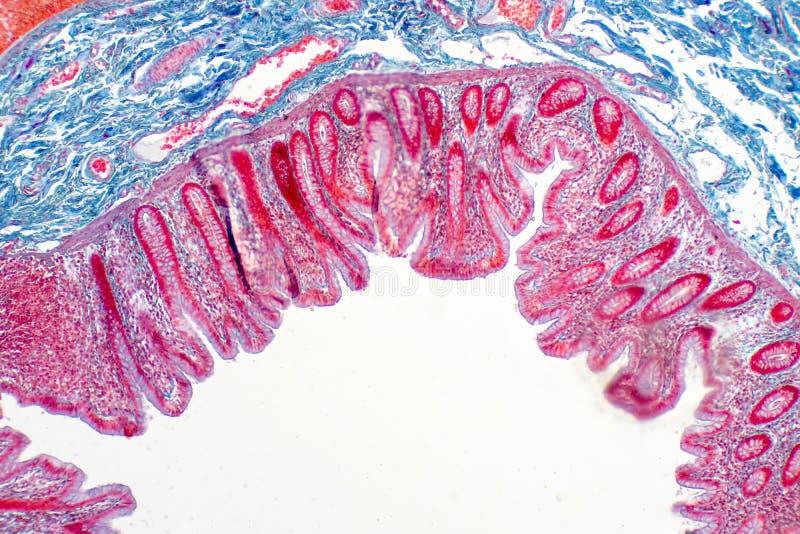 Tessuto umano dell'intestino crasso nell'ambito della vista del microscopio immagine stock libera da diritti