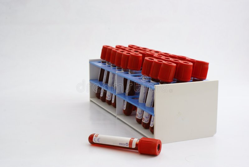 Test tubes with blood stock photos