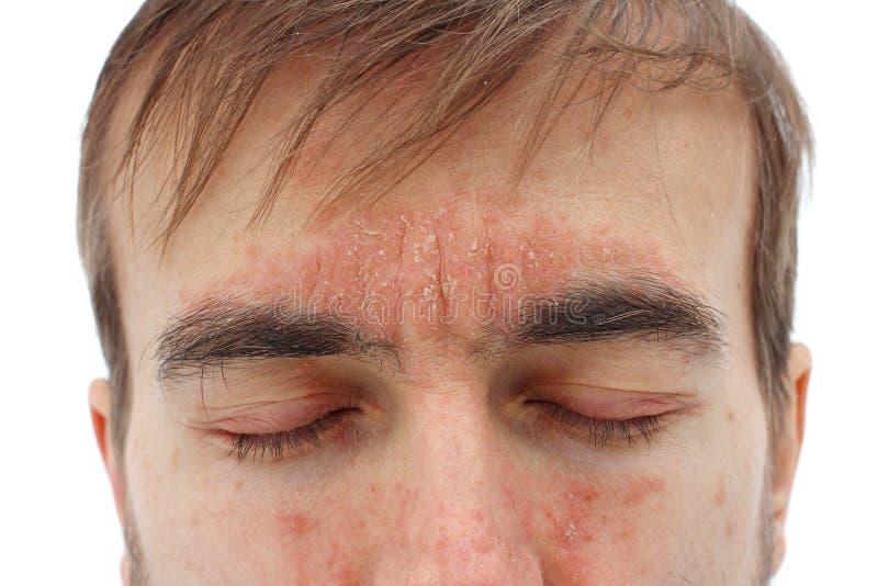 Testa dell'uomo malato con gli occhi chiusi con reazione allergica rossa su pelle, sul rossore e sulla psoriasi di pelatura sul n fotografia stock libera da diritti