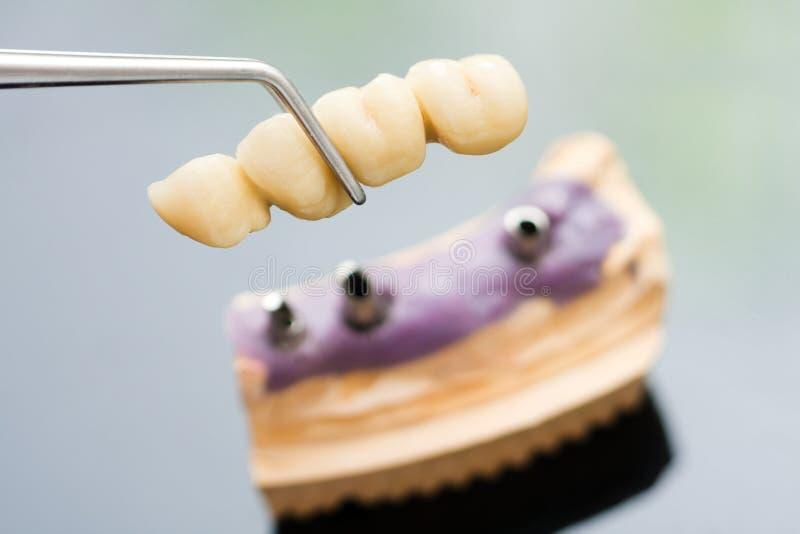 Testa e ponticello dell'innesto dentale fotografia stock libera da diritti