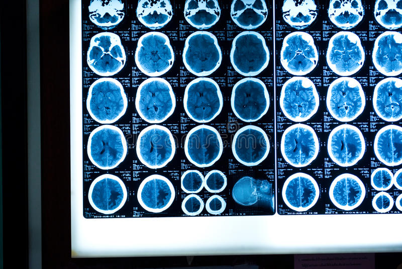 Testa MRI fotografie stock libere da diritti