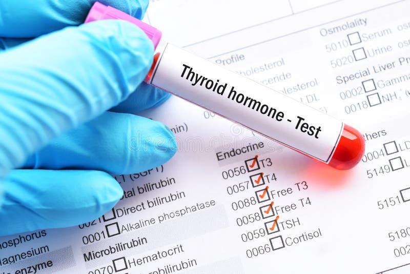 Teste da hormona de tiroide fotos de stock royalty free