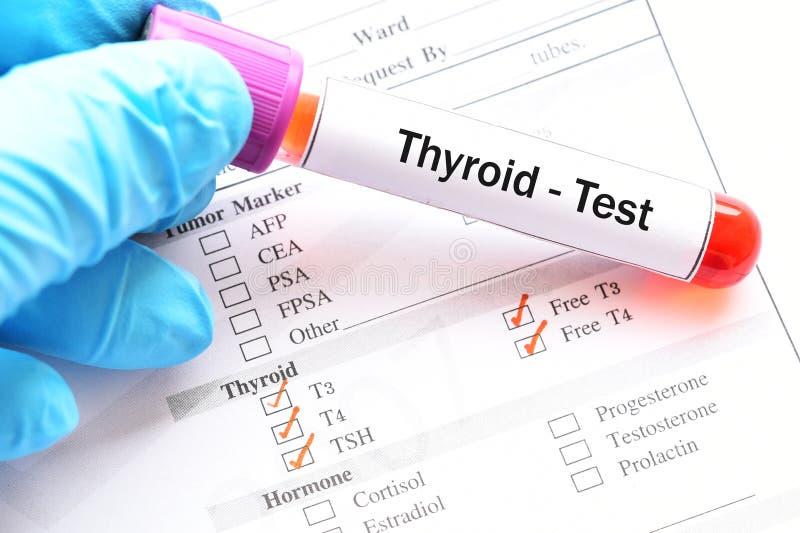 Teste da hormona de tiroide foto de stock royalty free