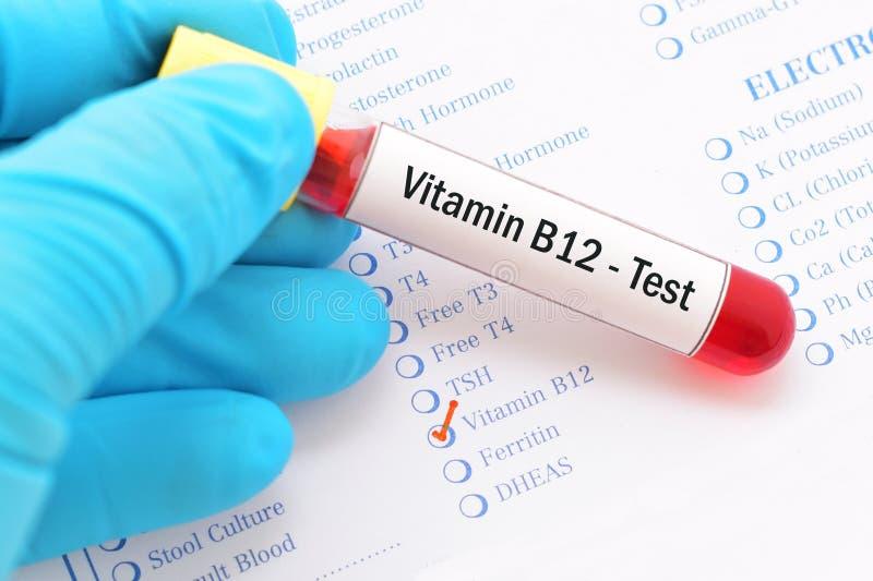 Teste da vitamina B12 imagem de stock