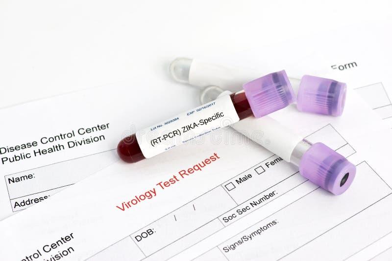 Teste de laboratório do vírus de Zika imagem de stock