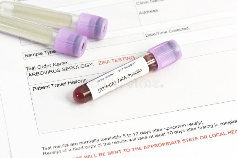 Teste de laboratório do vírus de Zika foto de stock royalty free