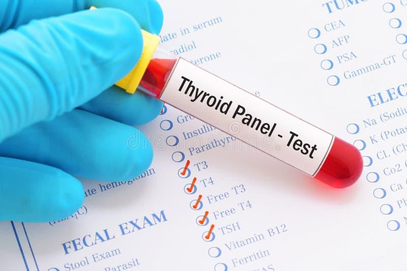 Teste de painel do tiroide fotos de stock royalty free