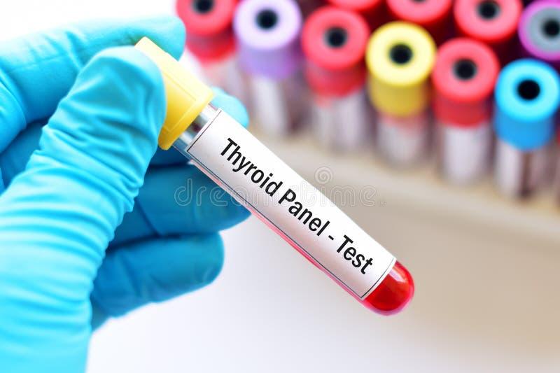 Teste de painel do tiroide fotografia de stock