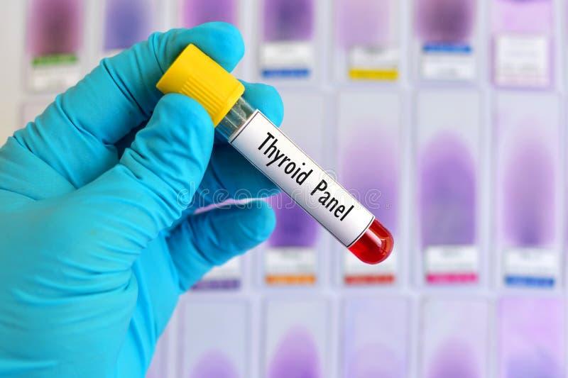 Teste de painel do tiroide imagem de stock royalty free