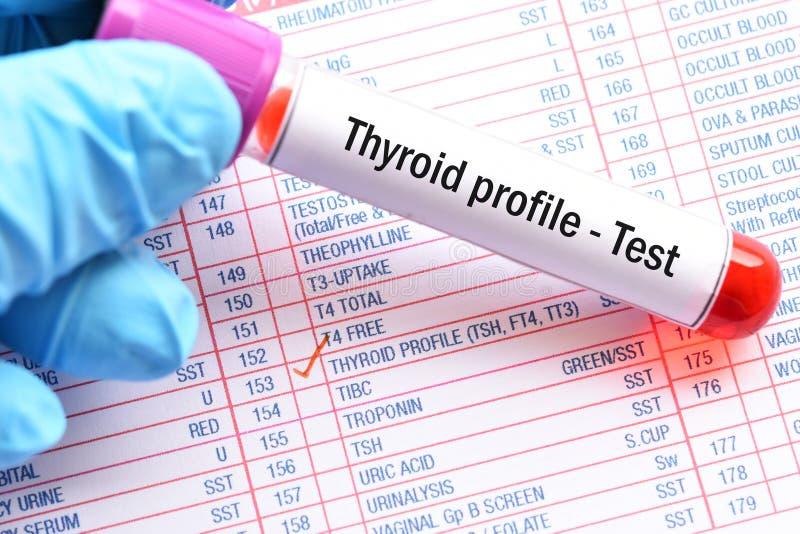 Teste de perfil do tiroide foto de stock