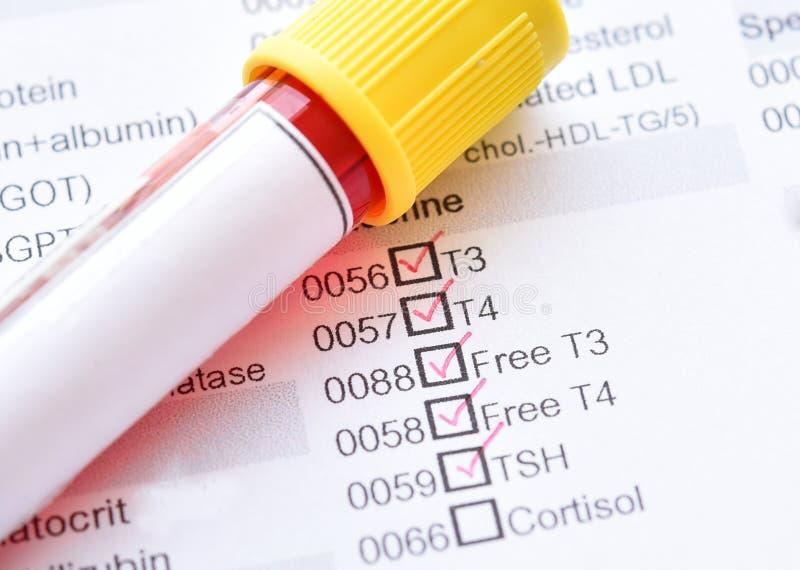 Teste de perfil do tiroide imagem de stock royalty free