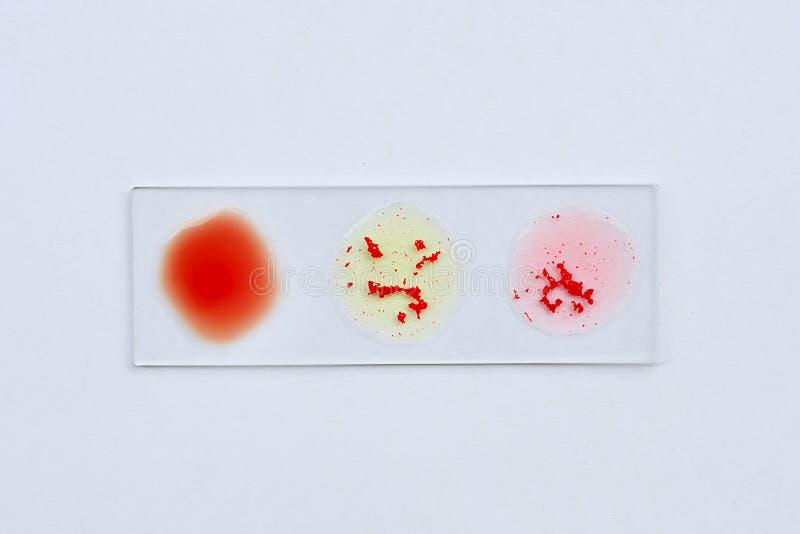 Teste do grupo sanguíneo fotografia de stock