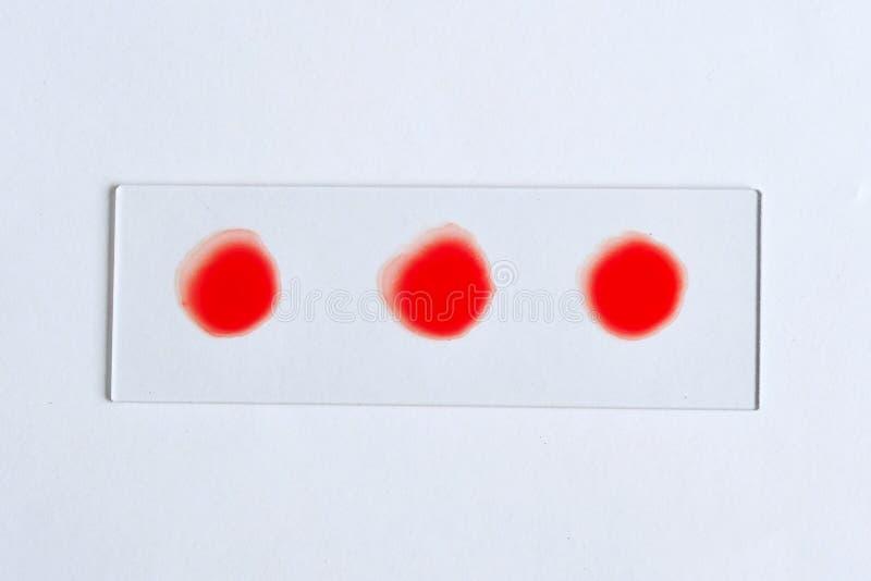 Teste do grupo sanguíneo fotografia de stock royalty free