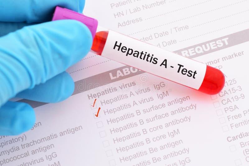 Teste do vírus da hepatite A imagem de stock royalty free