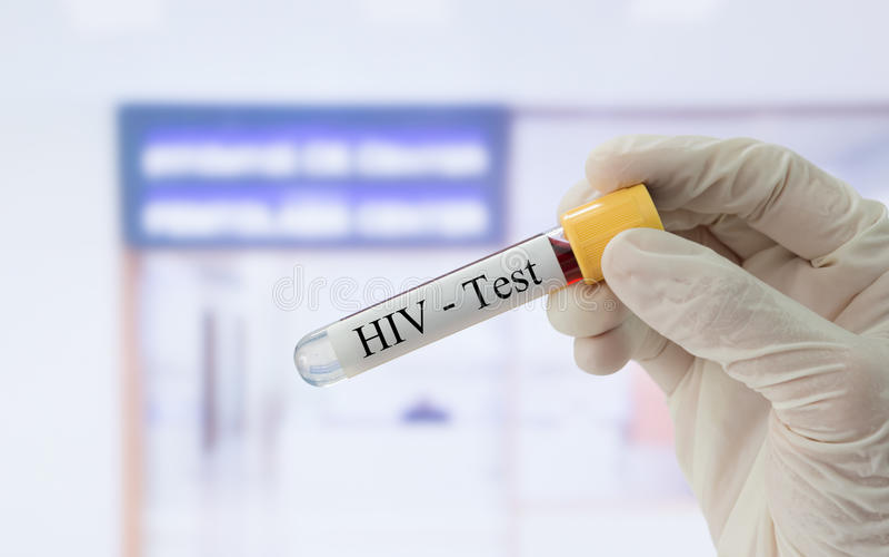 Teste do VIH imagens de stock royalty free