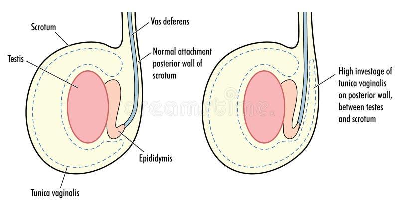 Testicolo normale e testicolo con gli alti vaginalis del tunica illustrazione di stock