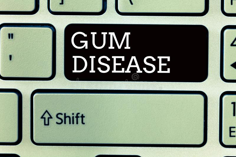 Text sign showing Gum Disease. Conceptual photo Inflammation of the soft tissue Gingivitis Periodontitis.  stock images