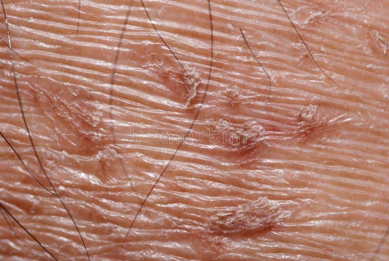 textur för torr hud arkivbilder