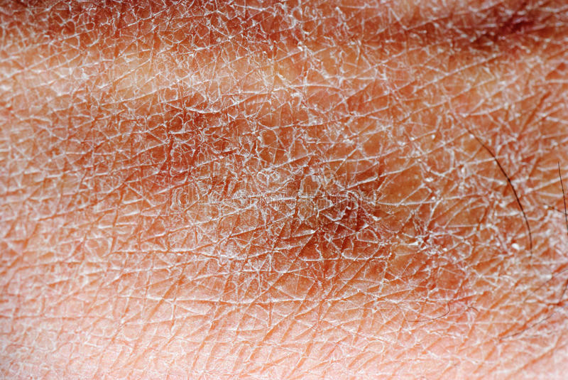 Textur för torr hud royaltyfri fotografi