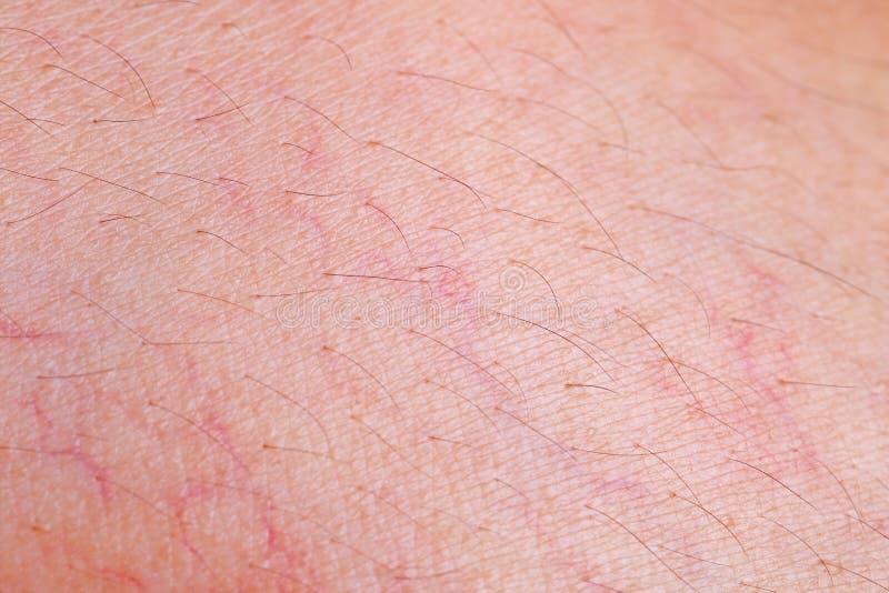 Textura da pele com o capilar para o teste padrão imagem de stock royalty free