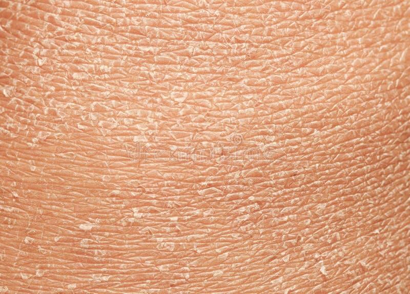 Textuur van de epidermis van menselijke huid met vlokken en gebarsten stock foto
