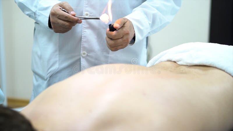 Thérapeute d'acuponcture plaçant une tasse au dos d'un patient masculin, médecine parallèle chinoise antique Fermez-vous pour a photos stock