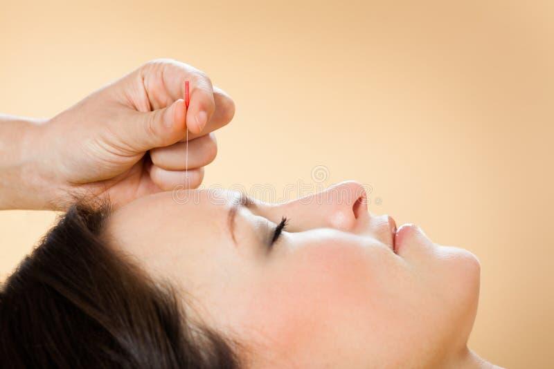 Thérapeute donnant le traitement d'acuponcture au client dans la station thermale images stock