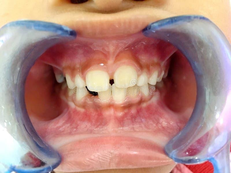 A Thai boy with Diastemas teeth problem onthe dental unit waitng to see the dentist in Hua Hin, Thailand April 1, 2018. Photo of A Thai boy with Diastemas teeth stock photos