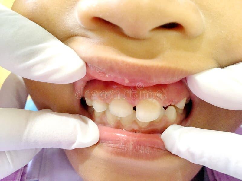 A Thai boy with Diastemas teeth problem onthe dental unit waitng to see the dentist in Hua Hin, Thailand April 1, 2018. Photo of A Thai boy with Diastemas teeth royalty free stock image