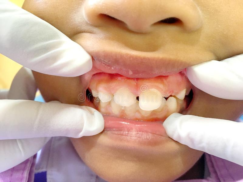 A Thai boy with Diastemas teeth problem onthe dental unit waitng to see the dentist in Hua Hin, Thailand April 1, 2018. Photo of A Thai boy with Diastemas teeth stock images