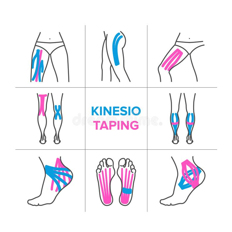 Free The Kinesio Taping Stock Images - 130283964