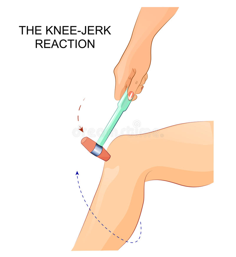 Free The Knee-jerk Reflex Stock Photos - 87459543
