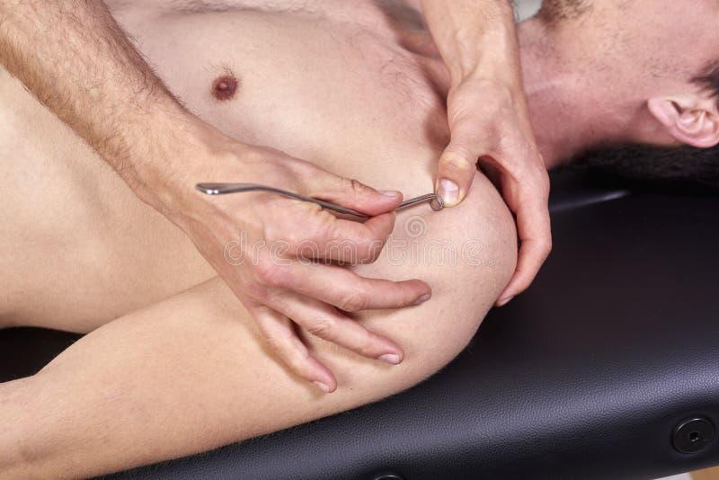 Therapeut die diacutaneous Fibrolysis, van de haken doen die behandeling op man& x27 helen; s rug Alternatieve geneeskunde Chirop royalty-vrije stock afbeelding