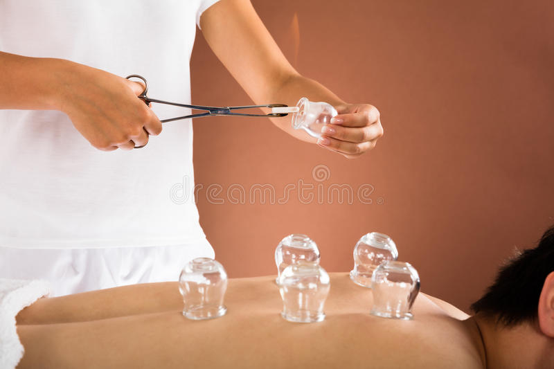 Therapeut Giving Cupping Therapy aan de Mens stock foto