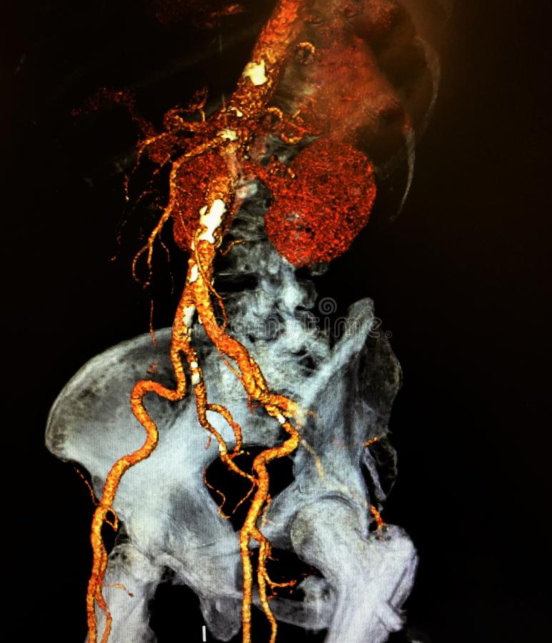 Ct angiography lateralview lumbar pelvis. There is lateral view of computer angio tomography , which shows vessels of lumbar and pelvic part of the body, in stock photo
