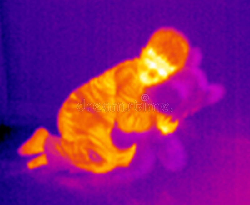 Thermograph-Kid and teddy royalty free stock image