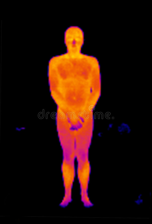 Thermograph-Nude Front Man Stock Photos