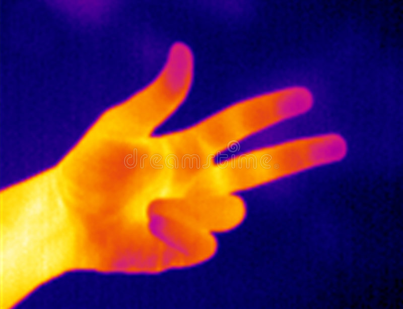 Thermograph-Three Fingers Royalty Free Stock Photo