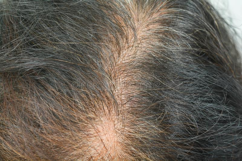 Thin hair in women. Thin hair royalty free stock images