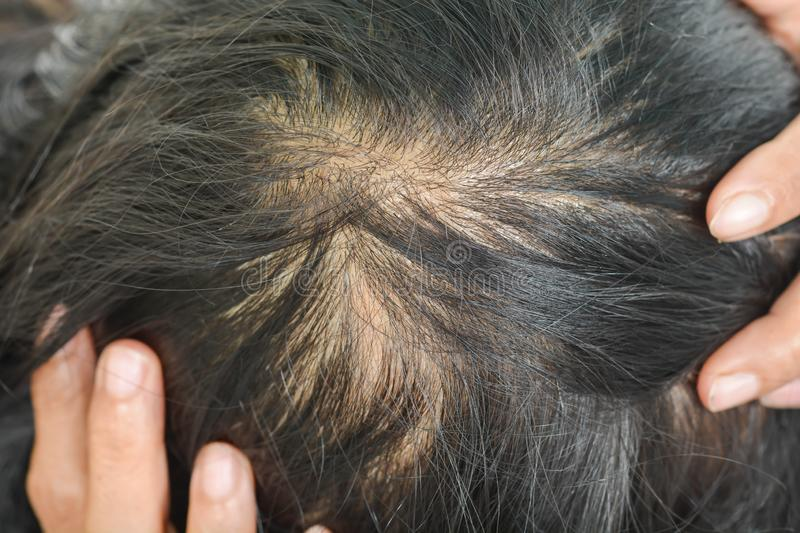 Thin hair in women. Scalp and dandruff problems, hair loss royalty free stock photo