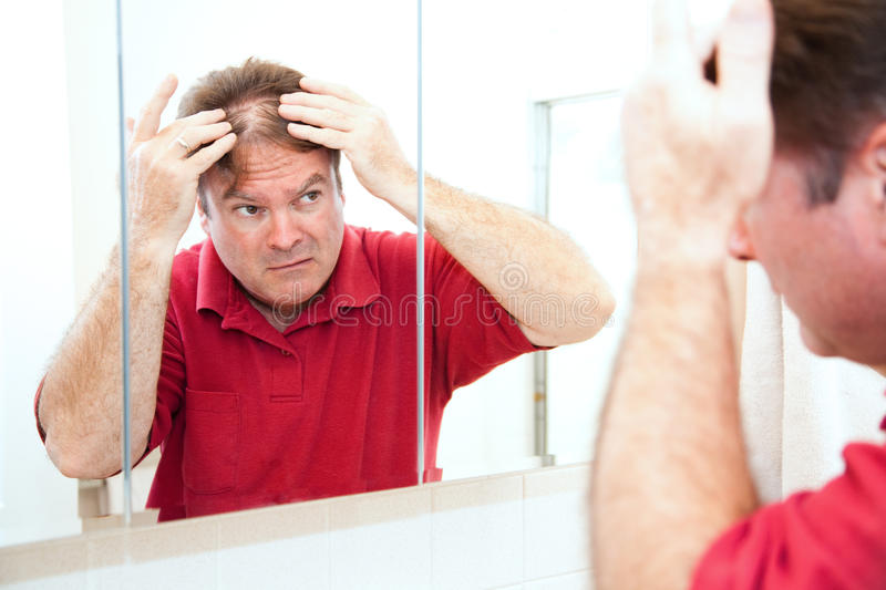 Thinning Hair in Middle Age stock photo